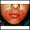 Candidiasis, cutaneous - around the mouth